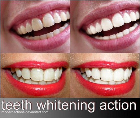 Teeth-whitening-action