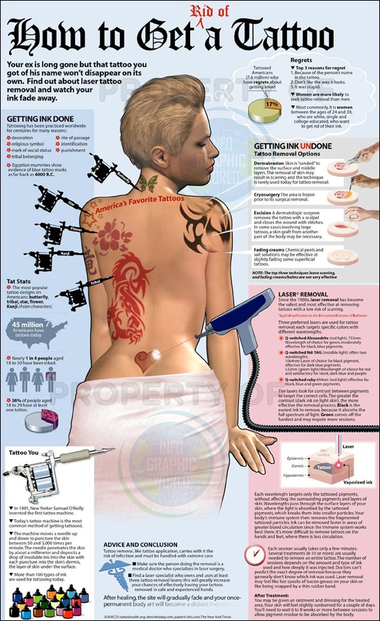 guide-to-tattoo-removal