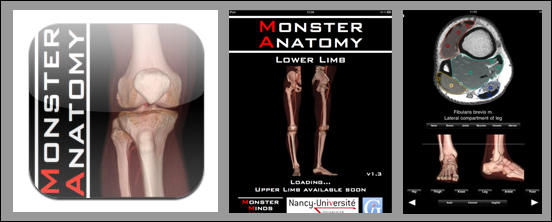 Monster Anatomy HD - Lower Limb
